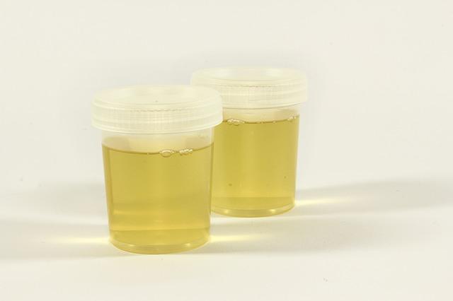 Using Urine As Fertilizer